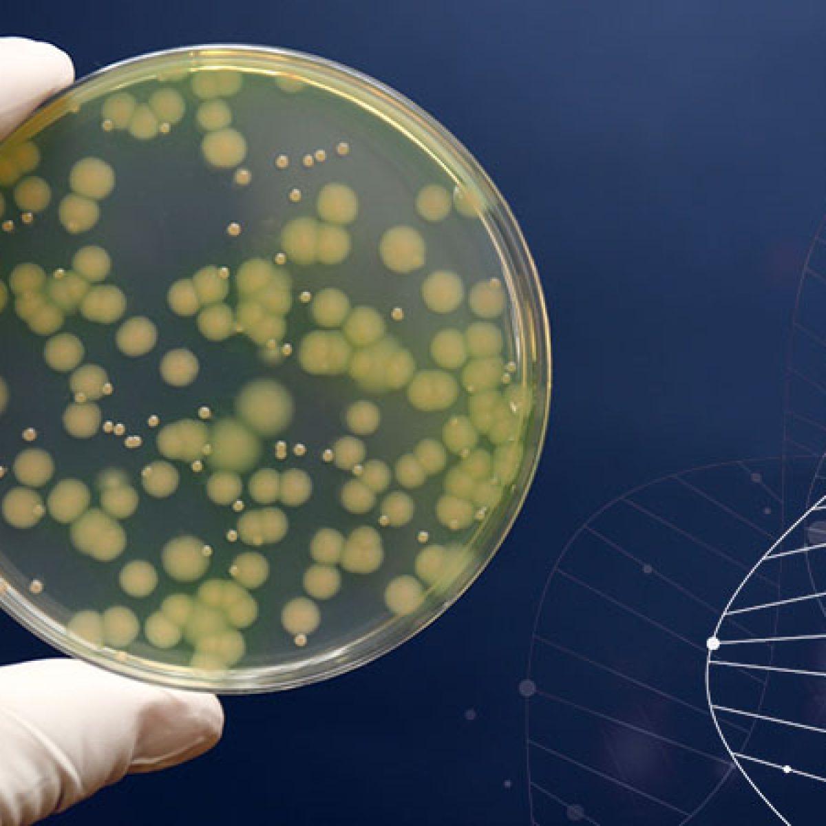 細菌の鑑別 緑膿菌 Pseudomonas aeruginosa